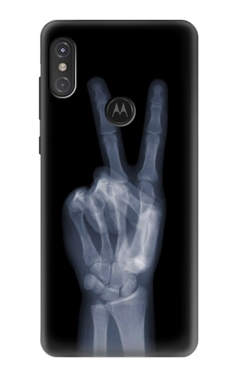 Printed X-ray Peace Finger Motorola One Power (P30 Note) Case