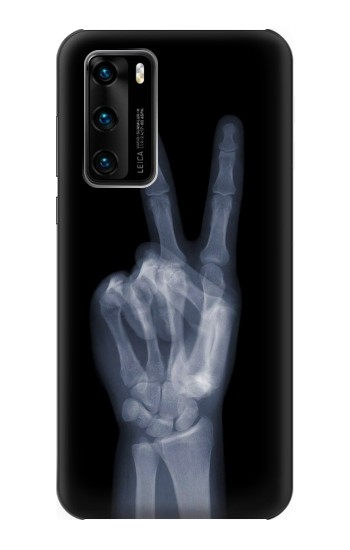 Printed X-ray Peace Finger Huawei P40 Case