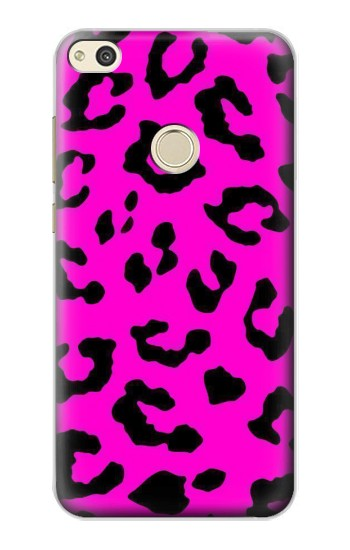 Printed Pink Leopard Pattern alcatel Idol 2 Case