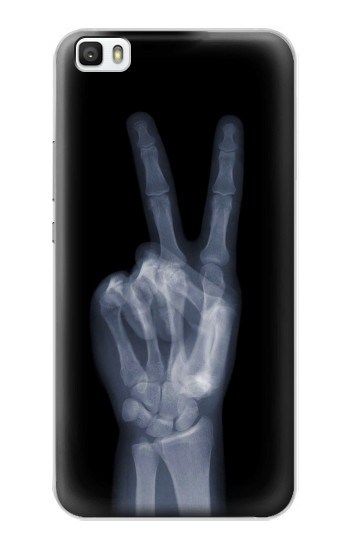 Printed X-ray Peace Finger Huawei P8lite Case