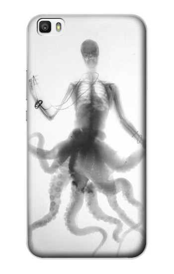 Printed Skull Octopus X-ray Huawei P8max Case
