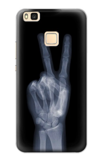 Printed X-ray Peace Finger Huawei P9 Lite / G9 Lite Case