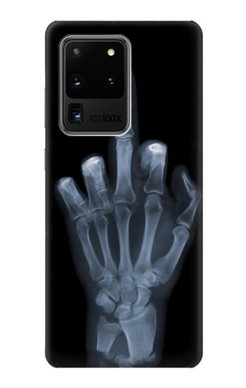Printed X-ray Hand Middle Finger Samsung Galaxy S20 Ultra Case