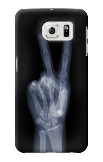 Printed X-ray Peace Finger Samsung Galaxy S7 edge Case
