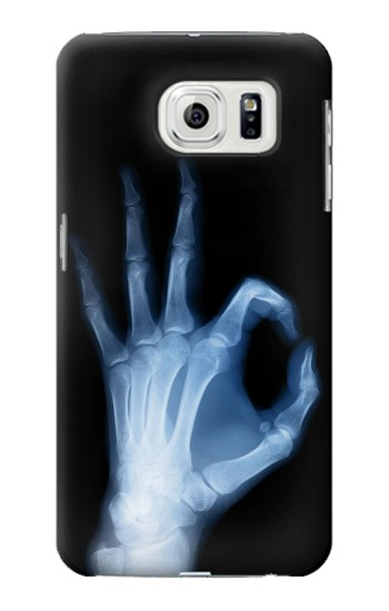 Printed X-Ray Hand Sign OK Samsung Galaxy S7 edge Case