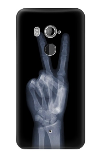 Printed X-ray Peace Finger HTC U11+ Case