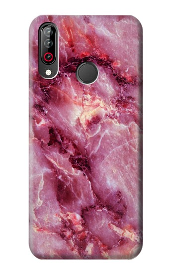 Printed Pink Marble Texture LG W30 Case