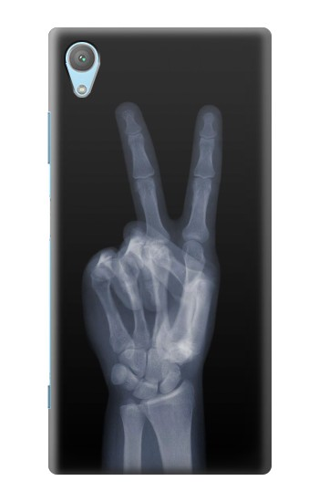 Printed X-ray Peace Finger Huawei Enjoy 5s Case