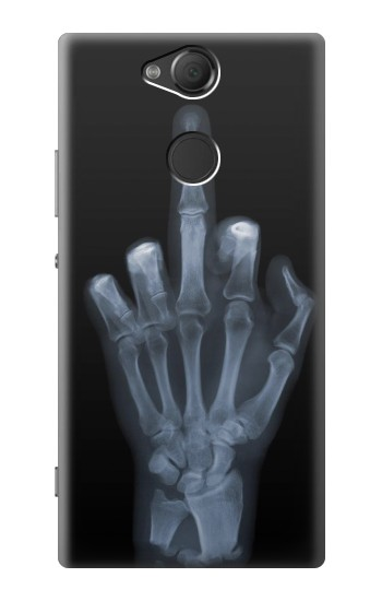 Printed X-ray Hand Middle Finger Sony Xperia XA2 Case