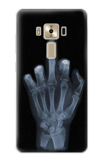 Printed X-ray Hand Middle Finger Asus Zenfone 3 ZE520KL Case